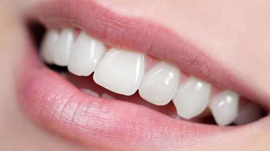 Fundas-dentales dental internacional