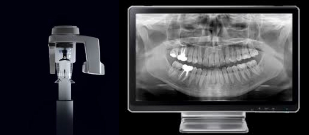Ventajas-3-Radiografia-panoramica-digital