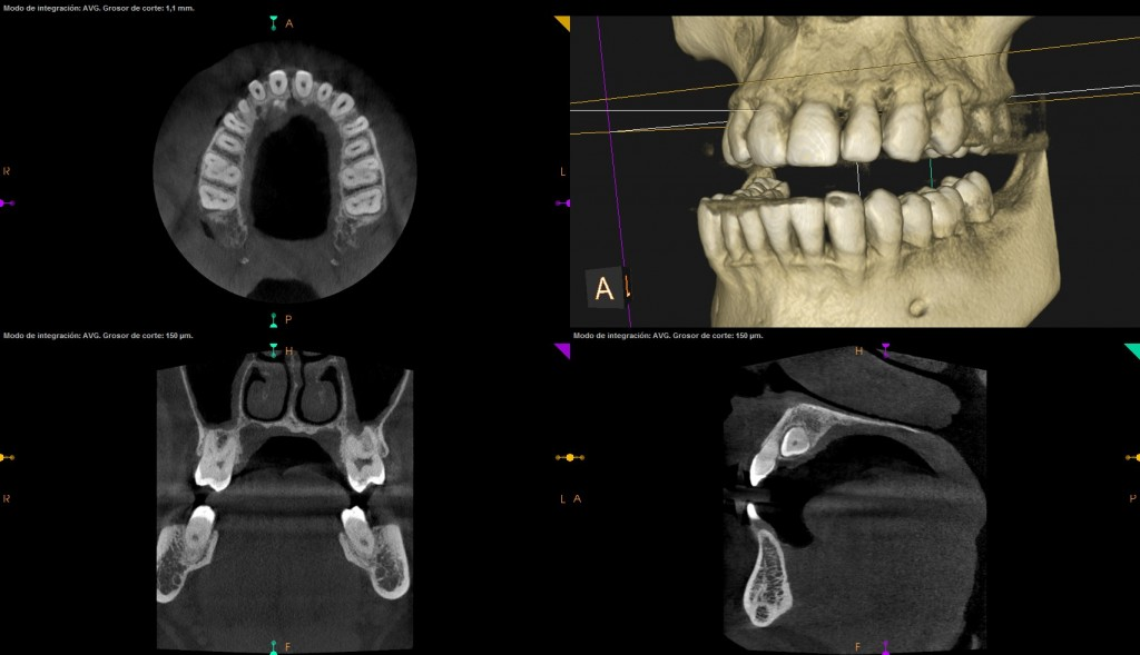 nuevo escaner 3d dental internacional