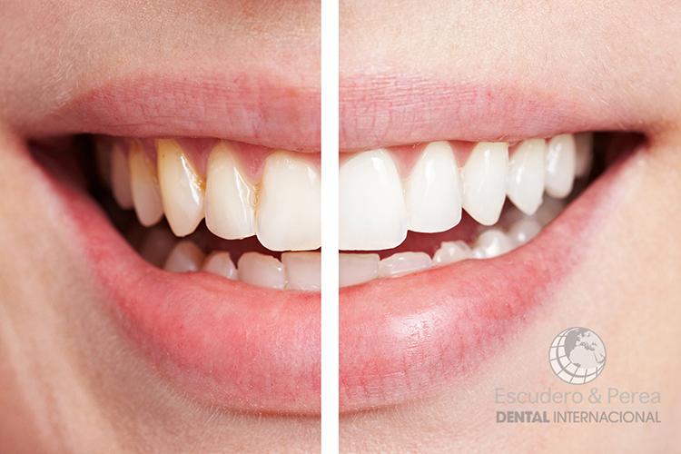 blanqueamiento-dental-1