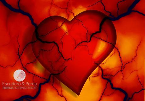 ¿Como puede afectar una mala salud bucal a nuestro corazón?