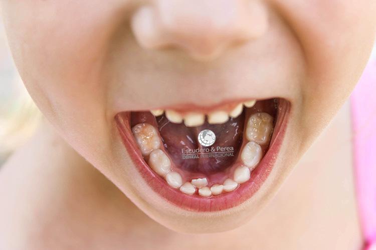 dientes de tiburón en niños centro dental internacional auditorium