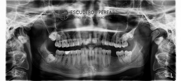 He perdido dos muelas hace  años ¿me pueden colocar  un implante dental en los espacios de las muelas perdidas?