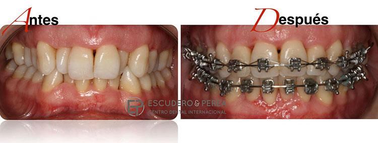 ¿Puedo llevar ortodoncia si tengo periodontitis?