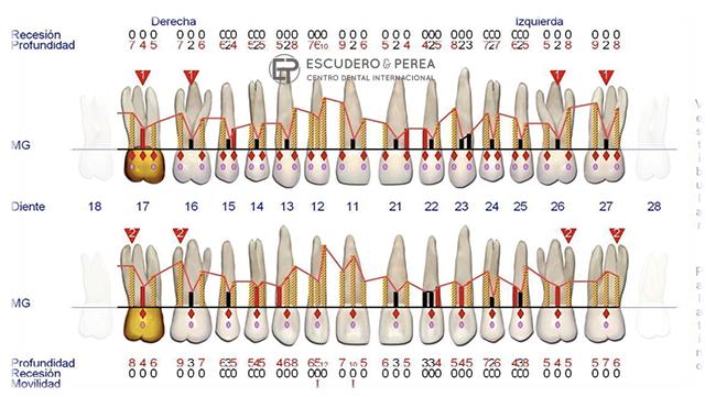 ¿Que pasa si mi caso periodontal es muy avanzado?