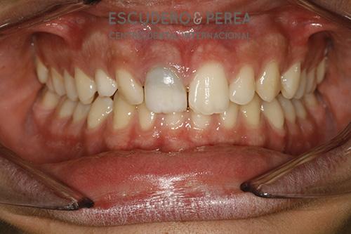 Tengo un diente oscuro ¿se puede aclarar?