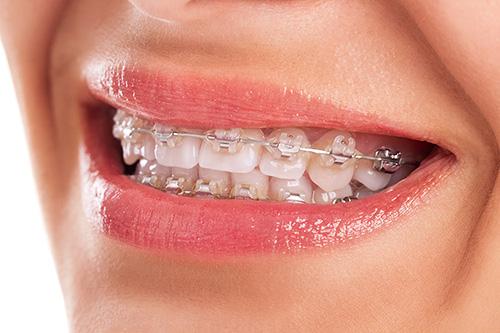 ¿Me pueden hacer un tratamiento de ortodoncia si llevo implantes dentales?