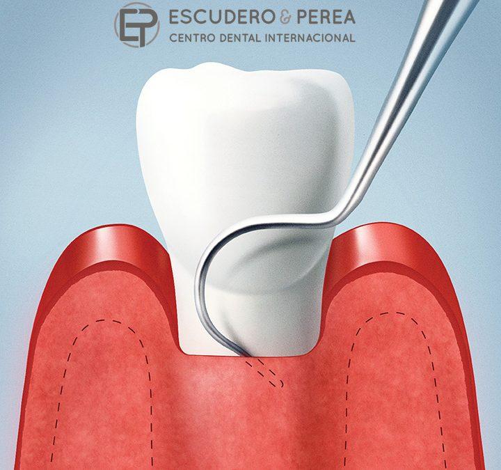 """¿Qué es el raspado y alisado radicular? Comúnmente e incorrectamente llamado """"curetaje dental"""""""