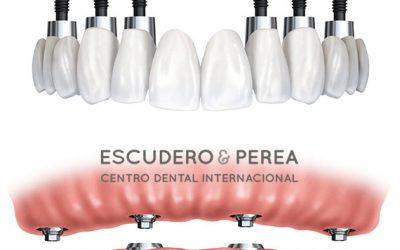 ¿Llevas implantes dentales y no sabes que marca  de implantes llevas?